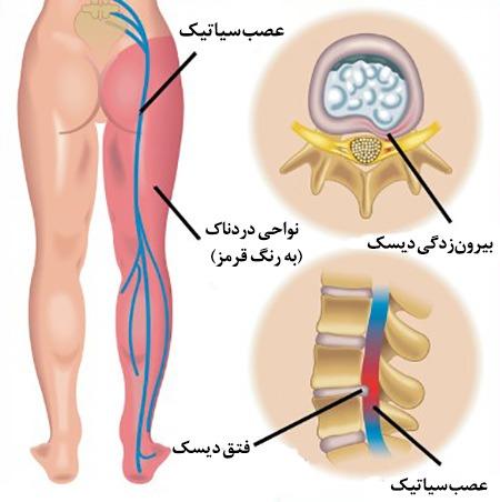 2 2 - درمان سیاتیک با ( دستگاه سیاتیک )