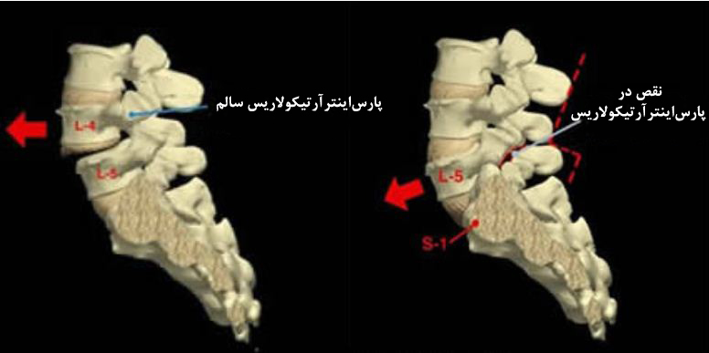 Capture1 - سرخوردگی مهره های کمر ؛ علت، علائم و درمان بدون جراحی سرخوردگی مهره
