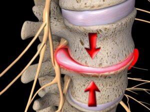 herniated disc 300x225 - درمان سیاتیک با ( دستگاه سیاتیک )