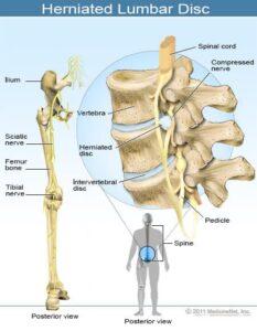 herniated lumbar disc 233x300 - کمردرد مزمن چیست؟ علت و درمان کمر درد