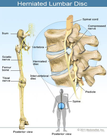herniated lumbar disc - کمردرد مزمن چیست؟ علت و درمان کمر درد