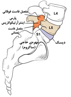 v22 - سرخوردگی مهره های کمر ؛ علت، علائم و درمان بدون جراحی سرخوردگی مهره