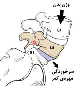 v33 - سرخوردگی مهره های کمر ؛ علت، علائم و درمان بدون جراحی سرخوردگی مهره