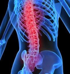 k - آشنایی با 10 نکته بسیار مهم درباره درد کمر